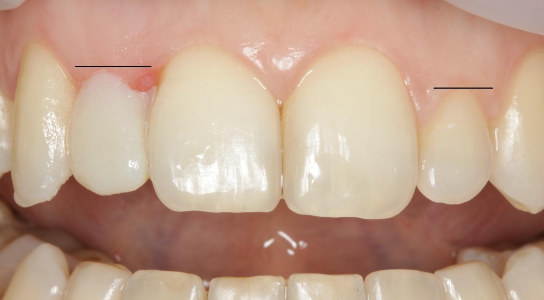 Что делать, если выдвинулся зуб? Об 18